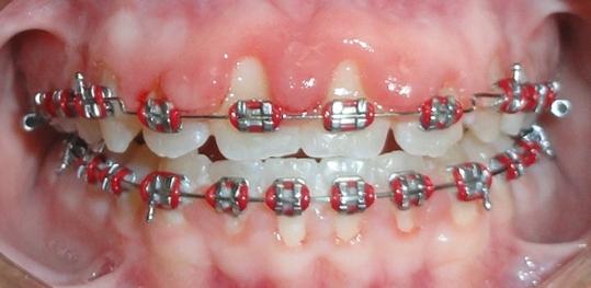 poor oral hygiene1